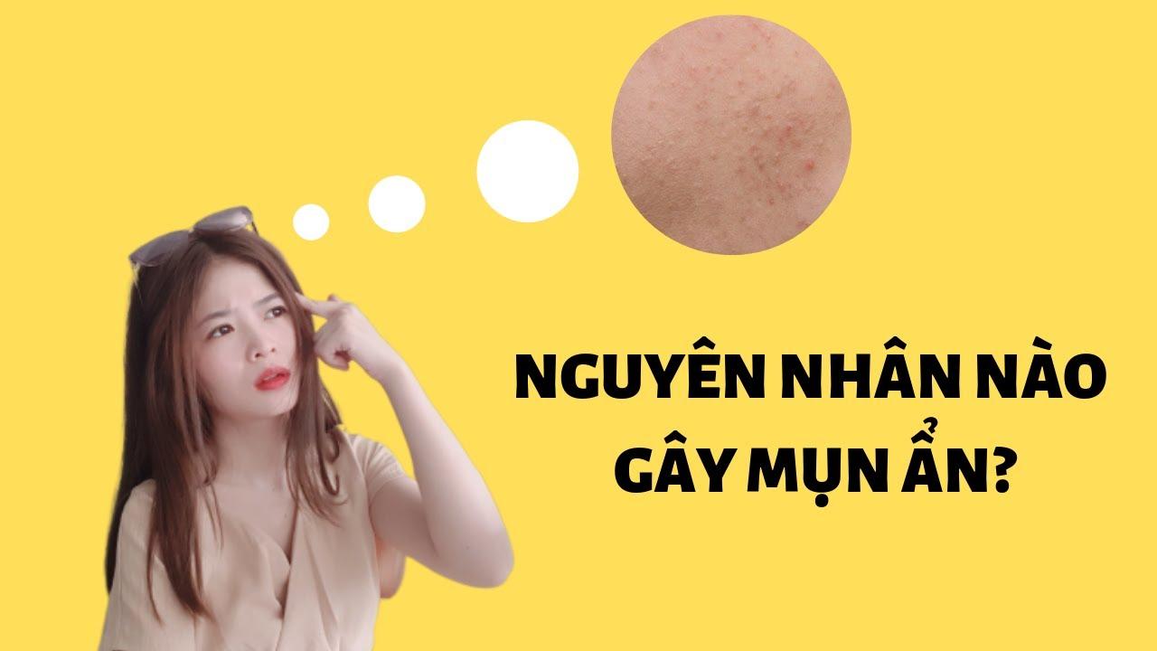cach-tri-mun-an-nguyen-nhan