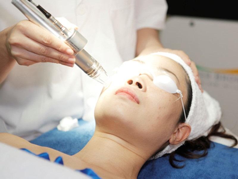Laser trị sẹo lồi