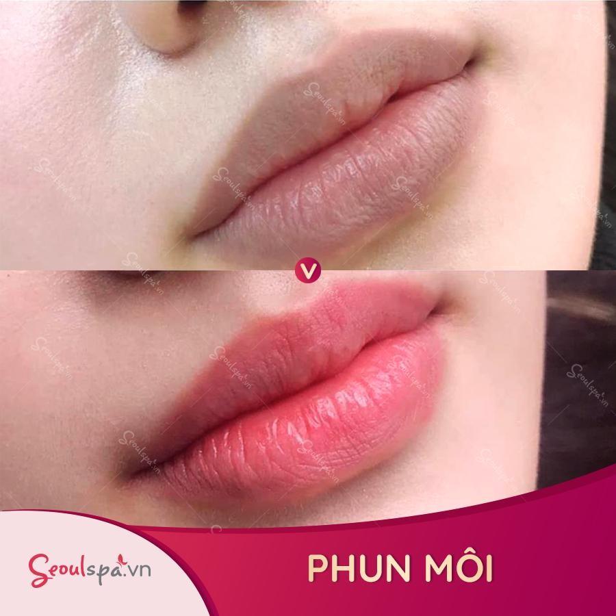 Kết quả phun môi bằng huyết thân tự thân thuyết phục khách hàng